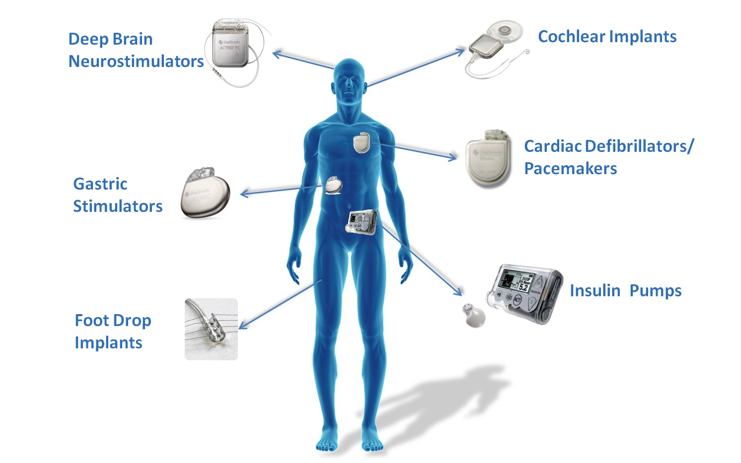 Implantable-medical-devices_graphic_WHITE